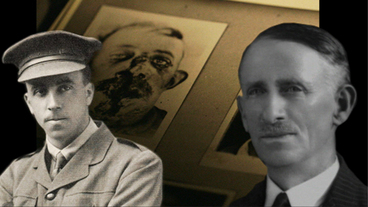 Image: Great War Stories 1 - Harold Gillies and Henry Pickerill