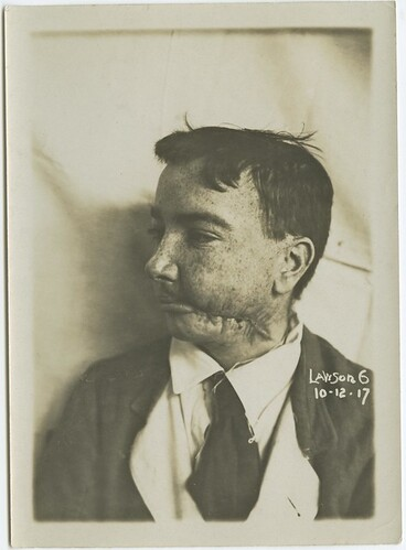 Image: Wounded soldier