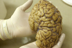 NZ scientists turn skin into brain cells
