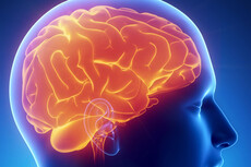 AUT to help brain injury patients