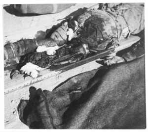 World War 2 soldier with one leg blown off by a bomb, El Alamein, Egypt - Photograph taken by K G Killoch